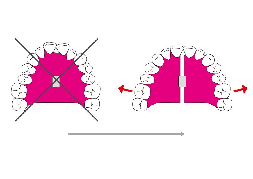 拡大症によって、歯列を側方に拡大し、歯を並べるスペースを作る
